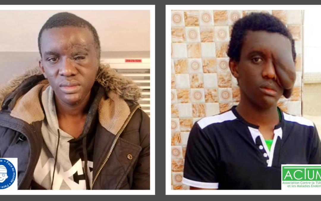 L'opération chirurgicale de Cheikhou SAKHO menée avec succès !